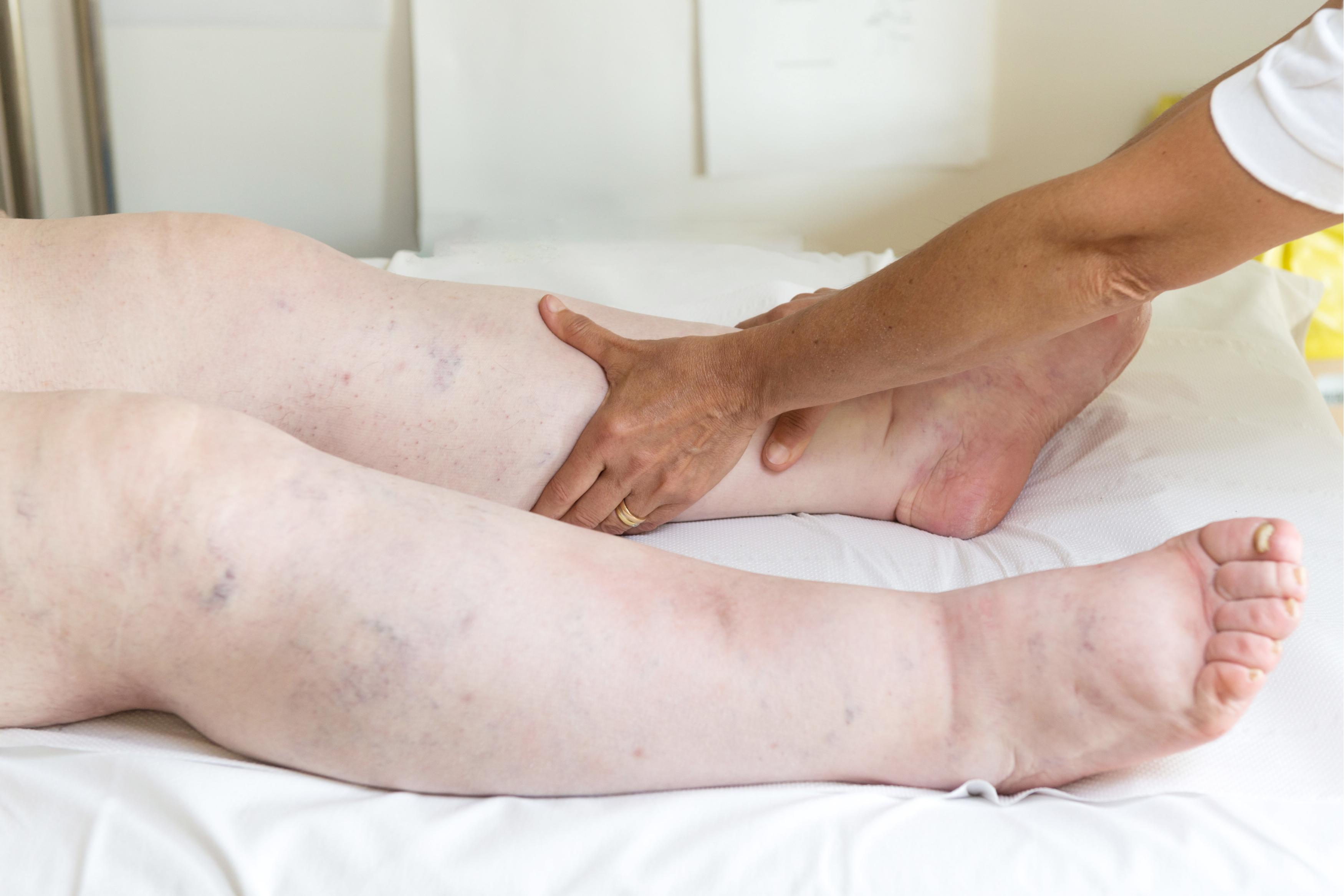 dureri de picioare umflate în articulație dureri de cot după sală