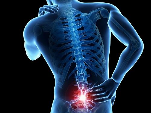 durere lombara spate