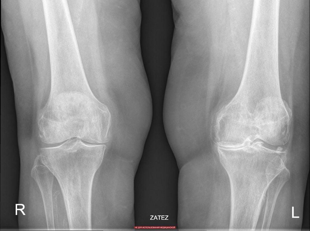 гонартроз мкб 10 semne ale artrozei genunchiului de gradul II