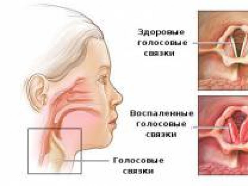 boli imune ale articulațiilor