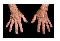 boala țesutului conjunctiv lupus eritematos
