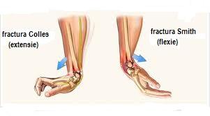 Cum recunosti o fractura | sfantipa.ro