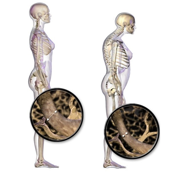 tratați articulațiile și coloana vertebrală
