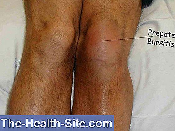 bursita bolii de șold