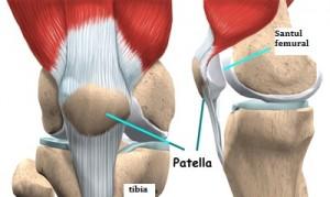 artroza femoropatelară a genunchiului