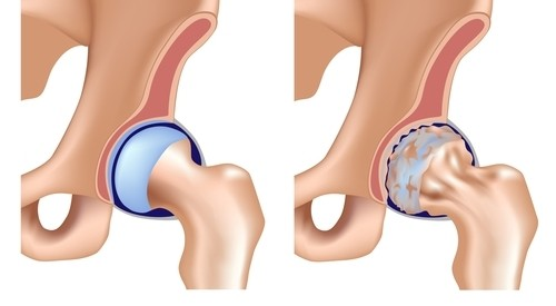 debutul artrozei articulației șoldului