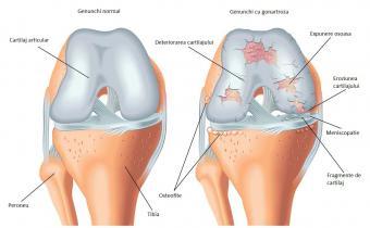 Artrita Genunchiului - tipuri de artrită, cauze, simptome, tratamente
