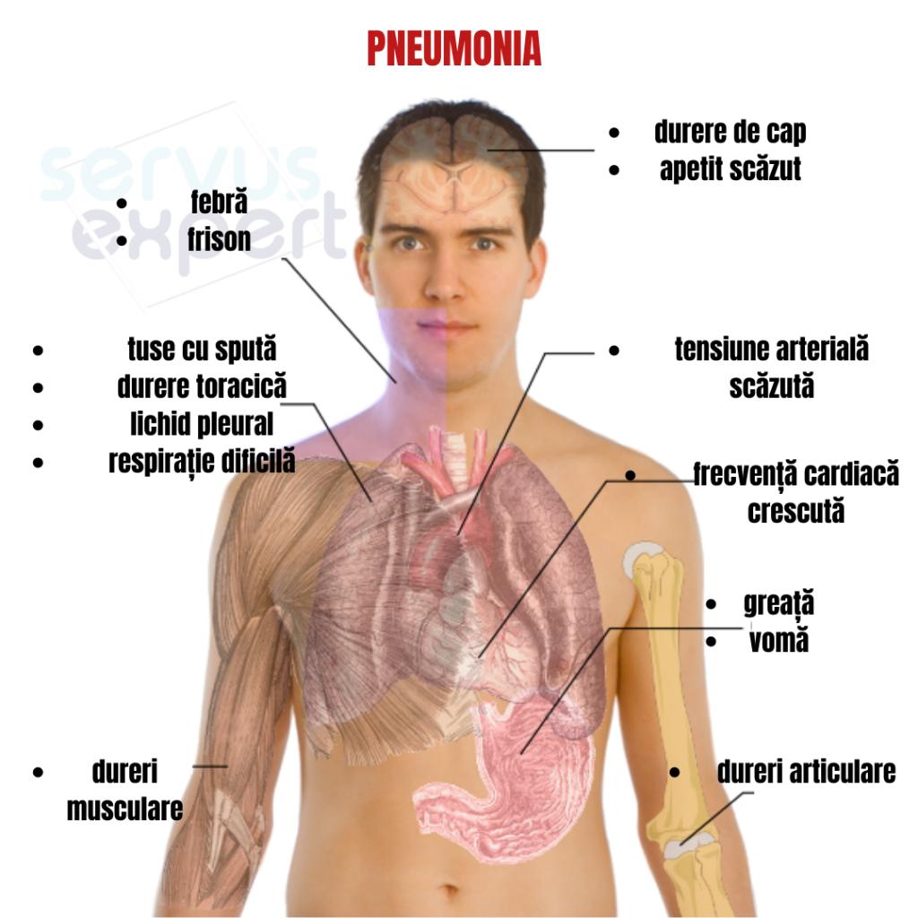 Pneumonia: simptome, cauze si tratament | Medlife