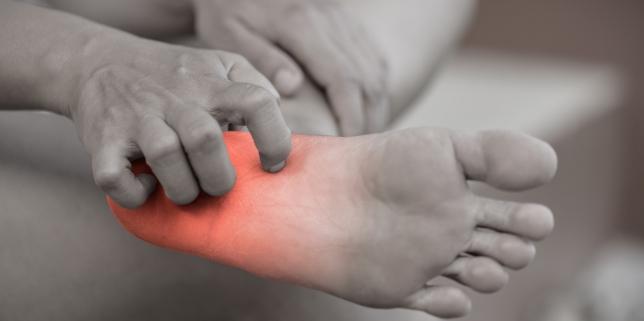 Mancarimile pielii: cauze si tratament