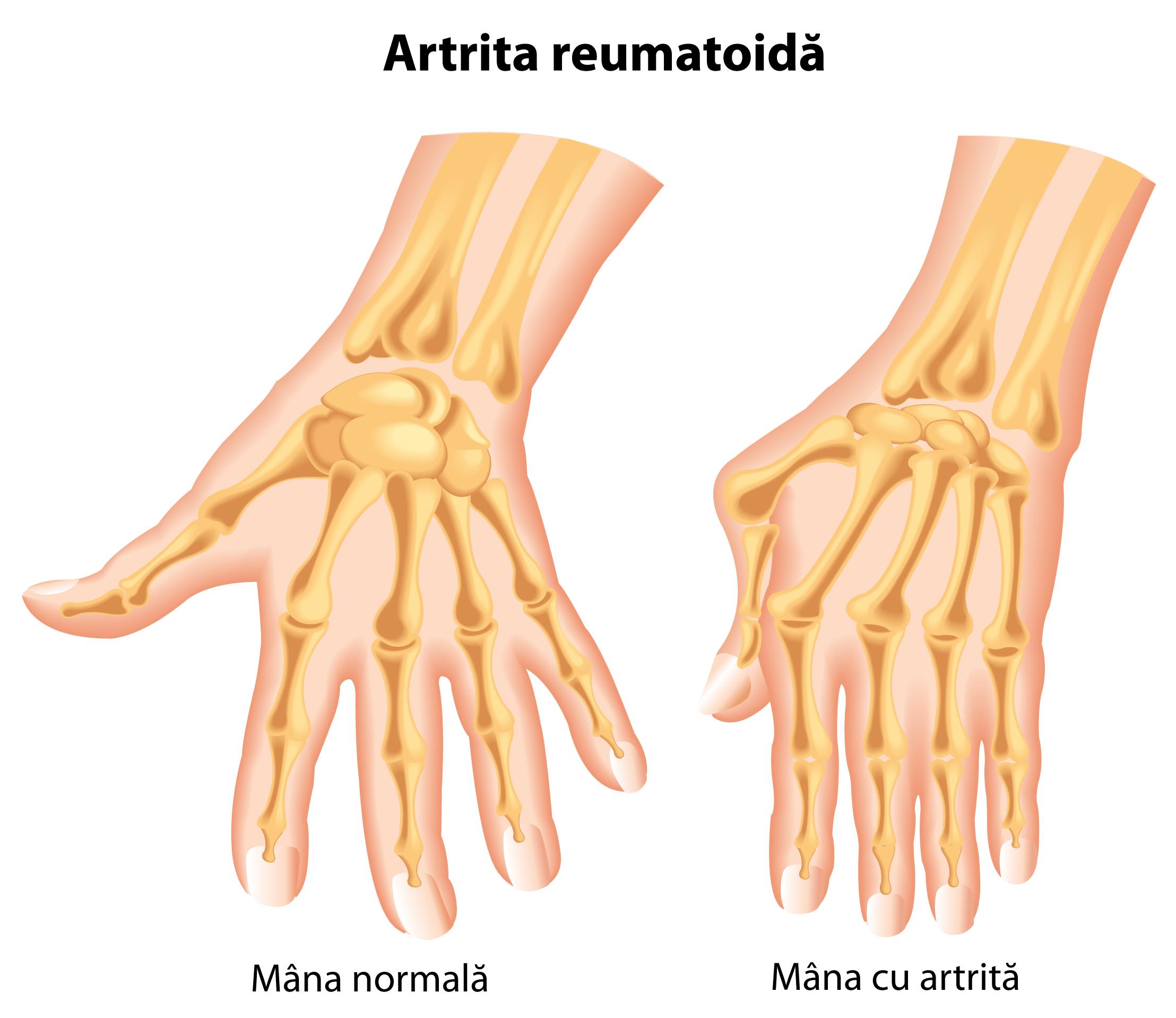 durere și deformare a articulațiilor degetelor