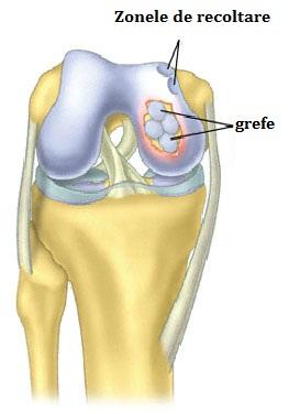 care sunt bolile articulare fractură în articulația gleznei