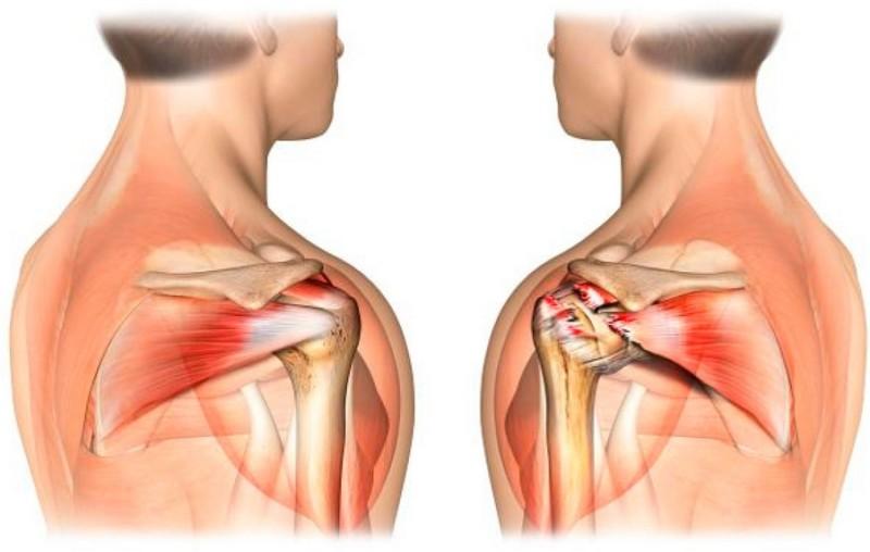 Рубрика: Remedii comune rănesc remedii populare Durere la inhalarea durerii în articulația umărului