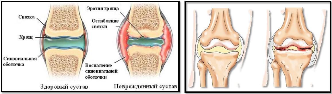 artrita artrozei insuficienței musculare a articulațiilor mari