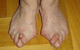 Artrita degetelor de la picioare ale etapei