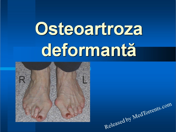 patogeneza artrozei deformante a genunchiului de ce doare articulația mâinii stângi