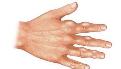 Ceea Ce Este - Cum să alinați durerea cu artroza articulației umărului