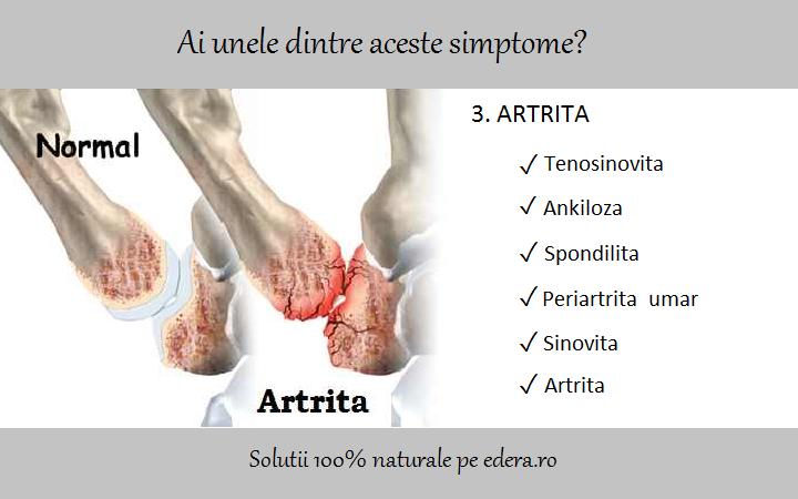 artroplastia șoldului doare