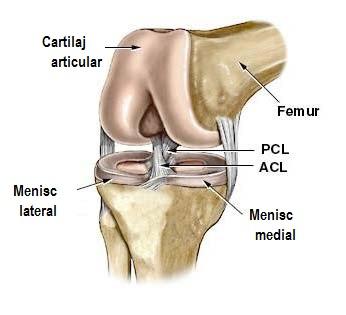 cât timp este tratată artroza articulațiilor șoldului tratamentul articular cu metoda antichizată
