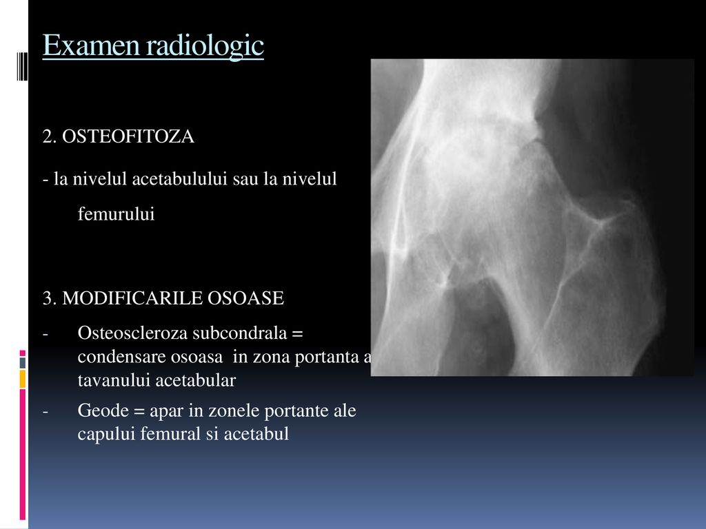 artroză 1-2 grade de tratament la picior