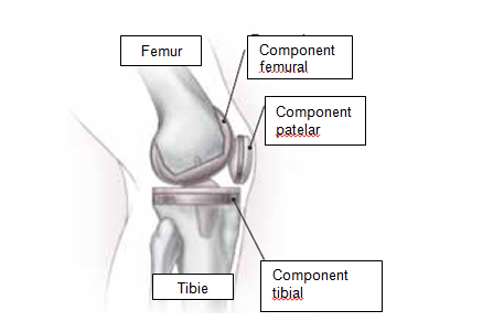 amorțeala durerii la genunchi