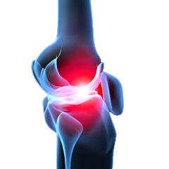 ce este artrita articulațiilor degetelor