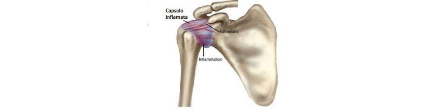 capsulita adezivă a tratamentului articulațiilor umărului reparații comune de runde