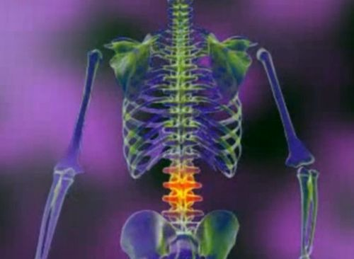 Osteoartrita coloanei vertebrale: cauze, diagnostic si tratament - Farmacia Ta - Farmacia Ta