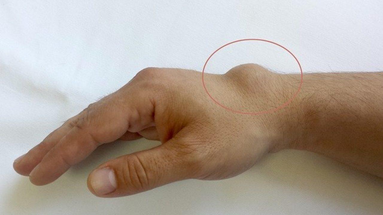 dacă articulația de pe braț doare mult timp