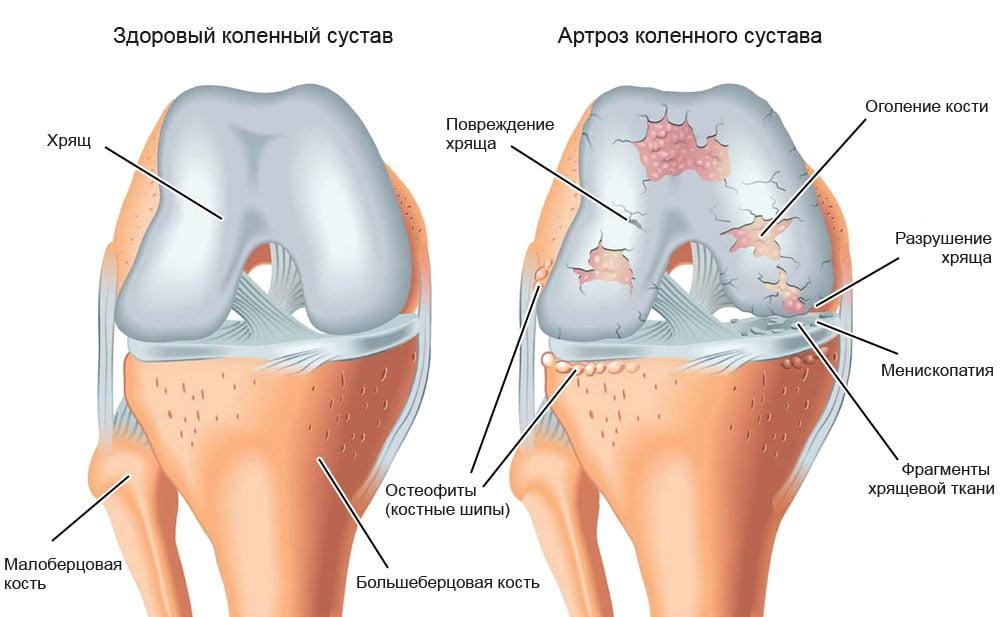 гонартроз мкб 10 durere în articulațiile degetelor