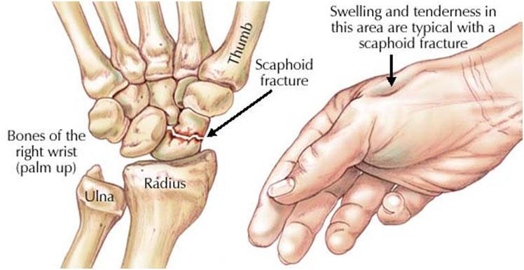 pentru dureri articulare la vârstnici tratamentul bursitei infrapatellare a genunchiului