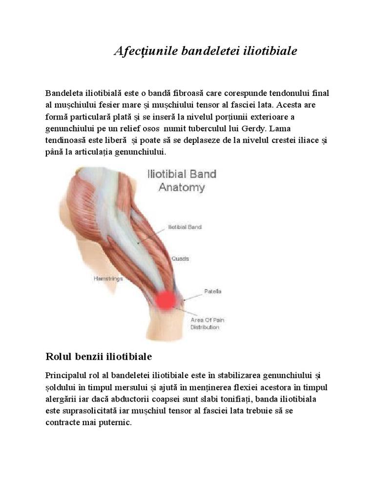 boala de levine a genunchiului