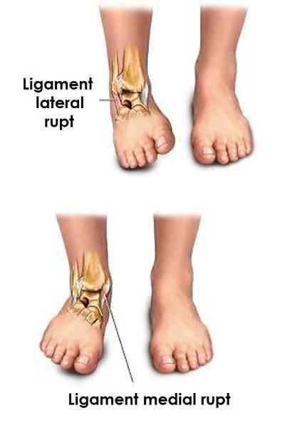 ruperea ligamentului leziunii gleznei artroza unguentului articulației umărului pentru durere