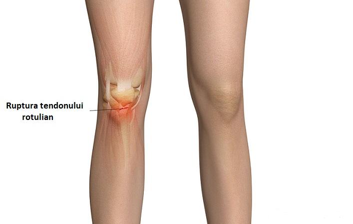 tratamentul rupturilor tendonului genunchiului