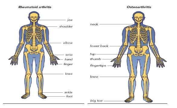 Istoric al bolilor articulare