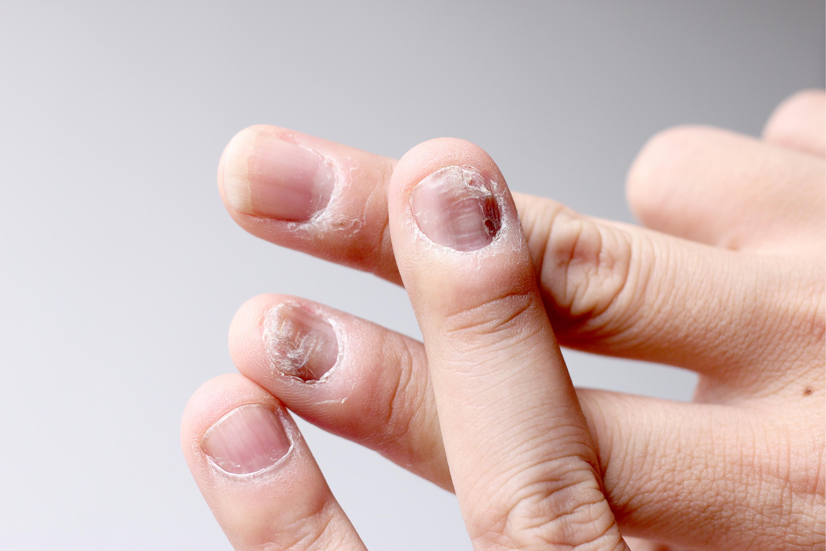Piele crăpată pe mâini. Cauze și tratament, Fisuri ale mâinilor tratamentul mâinilor