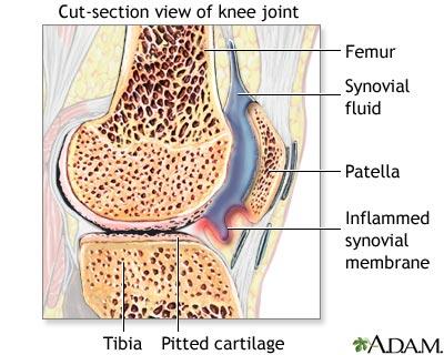 medicamente pentru sinovita genunchiului injecție articulară pentru artroză