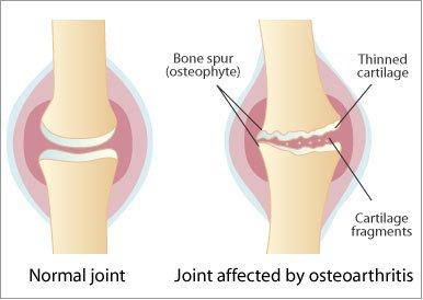 artroza tratamentului articulației coloanei vertebrale