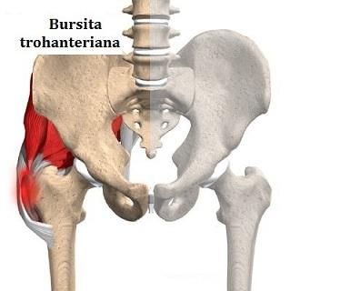 medicamente pentru bursita articulației șoldului