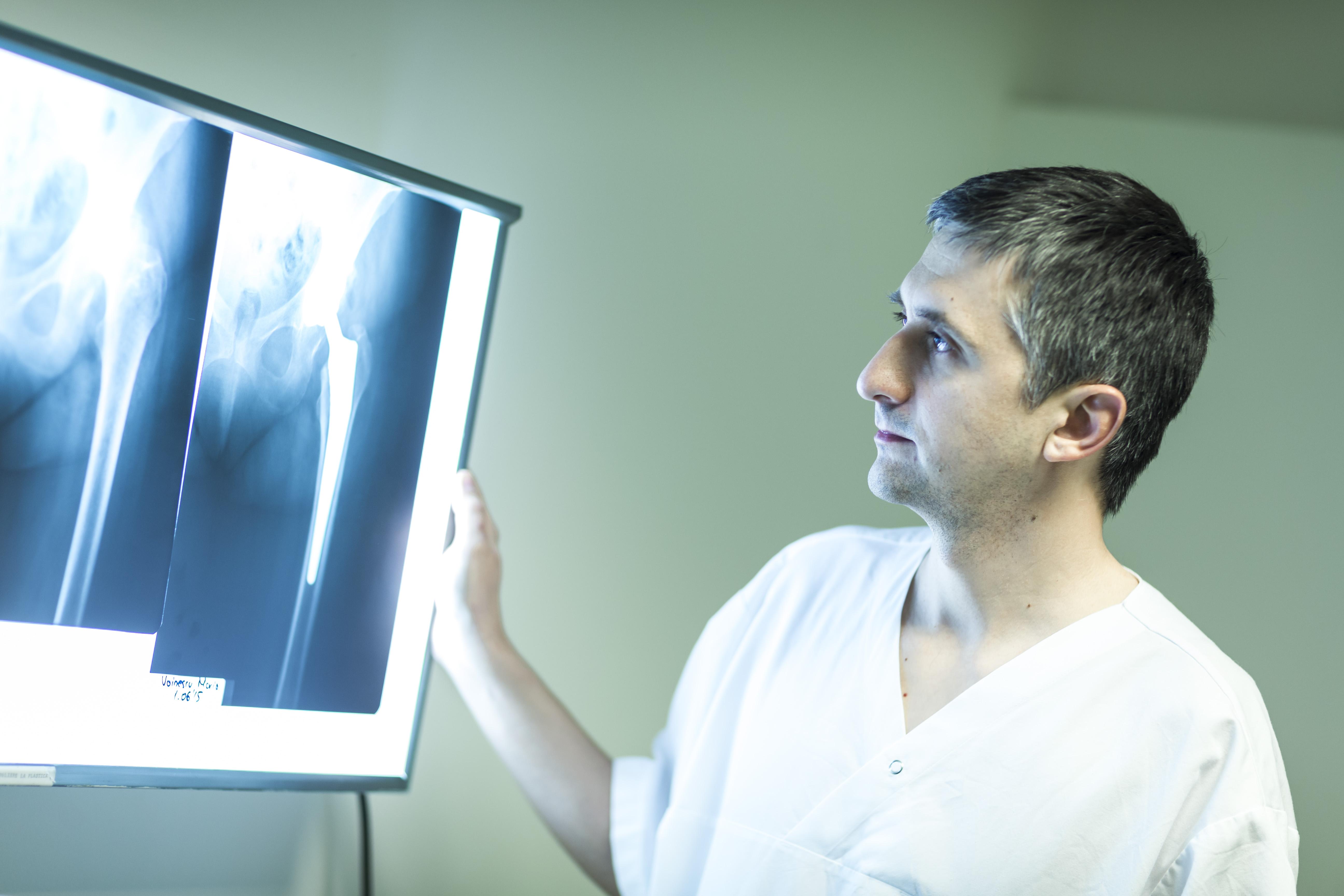 Costa artroza soldului