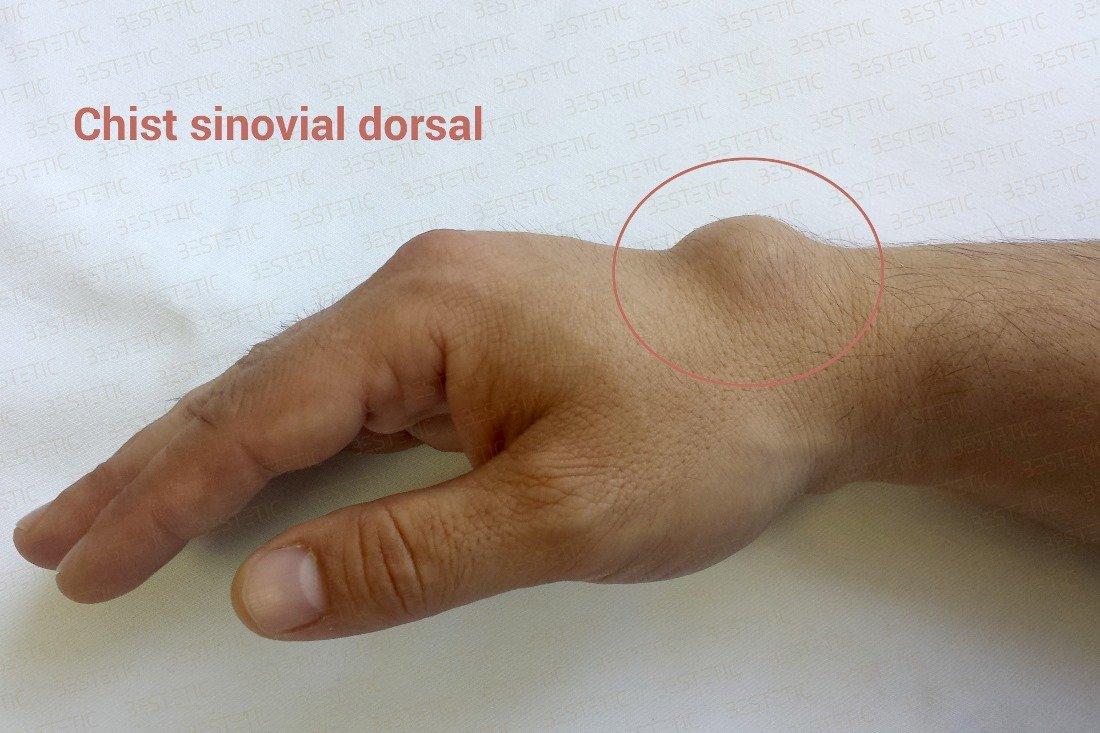 dureri de mână în articulația încheieturii