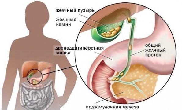 stagnarea bilei și a durerilor articulare artrita denumirii unguentului genunchiului