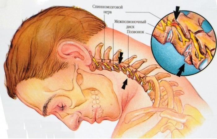 Osteocondroza