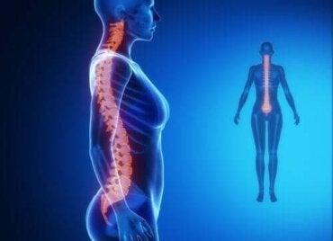 remedii pentru tratamentul coloanei vertebrale și articulațiilor