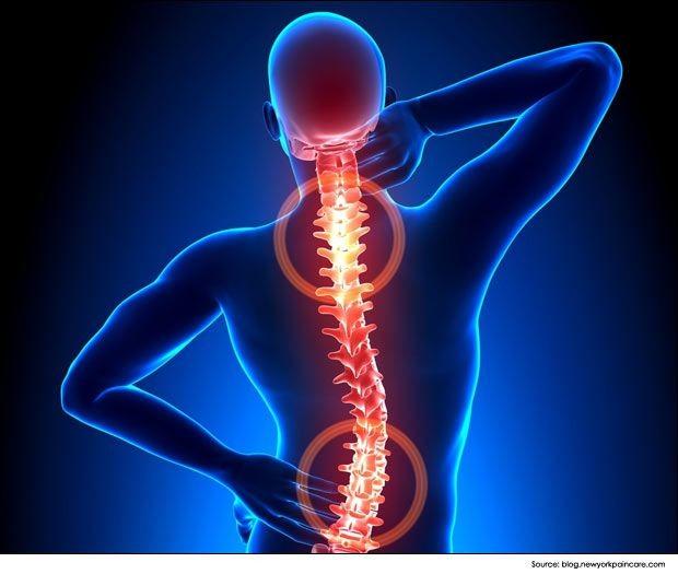 Simptome de artroză a articulațiilor picioarelor
