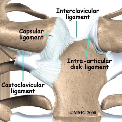 Inflamația articulației sternale claviculare Generalitati