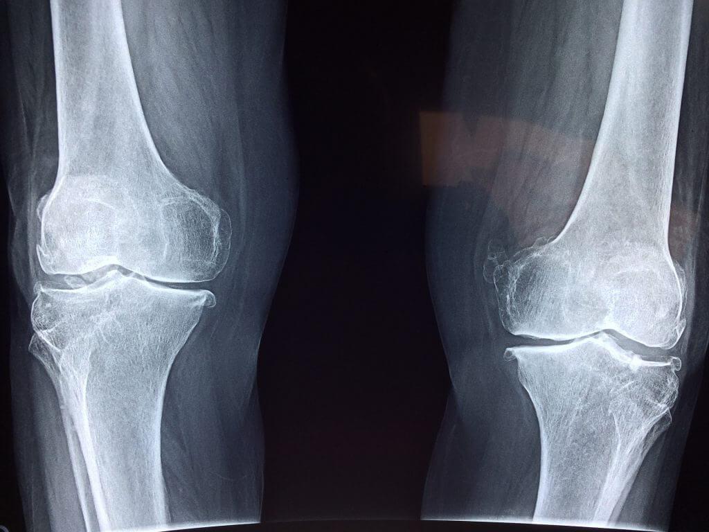 Ce este gonartroza și cum se dezvoltă? | Medlife, Gradul de artroză a genunchiului radiografic