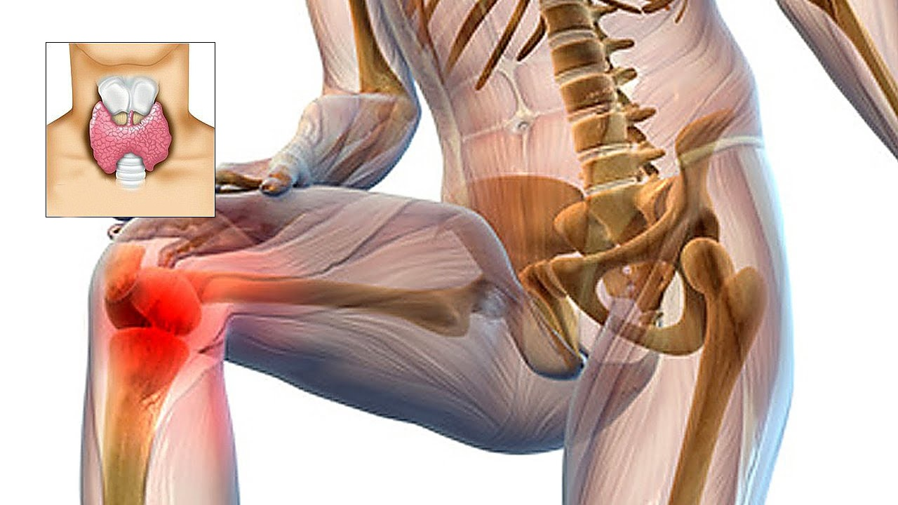 sindromul durerii musculare și articulare