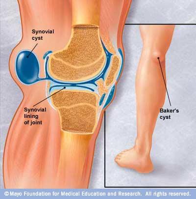 călcâiul în articulație doare ce unguent pentru osteochondroza este mai bun