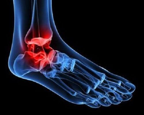 simptomele bolii gleznei recuperare după ruperea ligamentelor articulației umărului