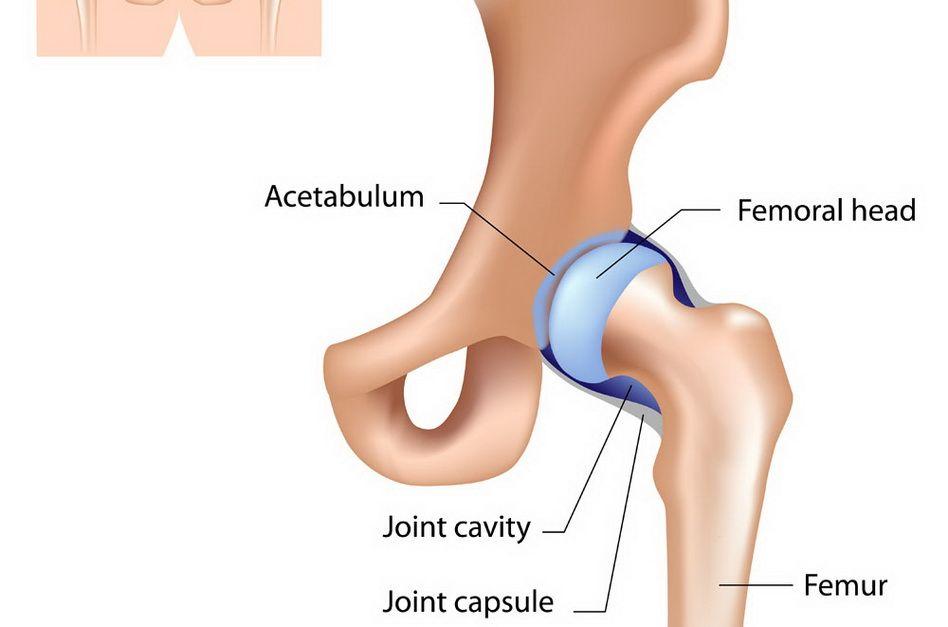 cauza durerii atunci când mergeți în articulația șoldului